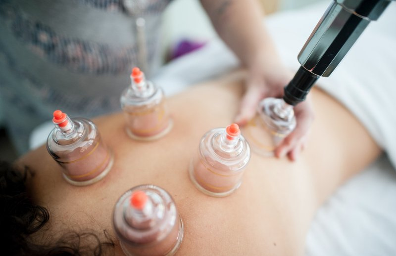 Cupping Therapy for Lymphatic Drainage and Cellulitis