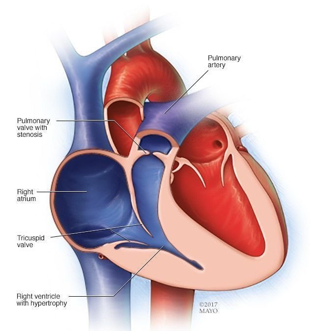 Atrésie pulmonaire à septum intact-APSI