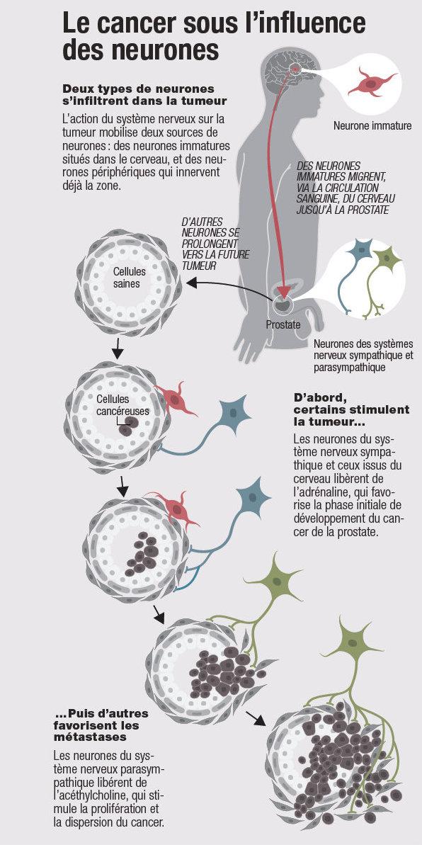 Les tumeurs ont des neurones !
