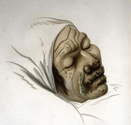 Lèpre Léontine, Jean Louis-Marie Alibert, Clinique de l'hôpital Saint-Louis ou traité complet des maladies de la peau, 1833. L'agrandissement montre la photographie de trois Tahitiens souffrant de lèpre, vers 1895, National library of Australia.