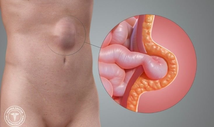 Chirurgia defectelor parietale abdominale