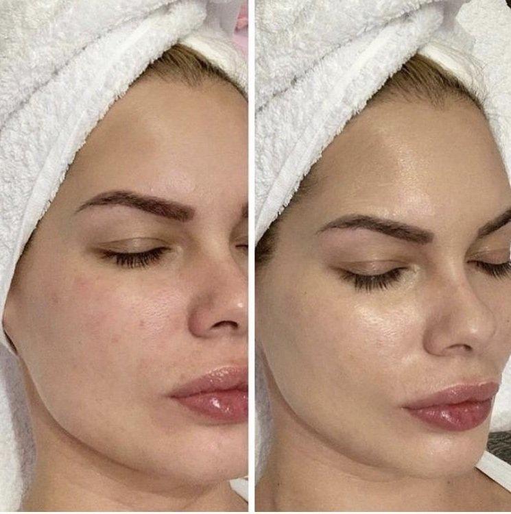 BB Glow Facial (Microneedling)