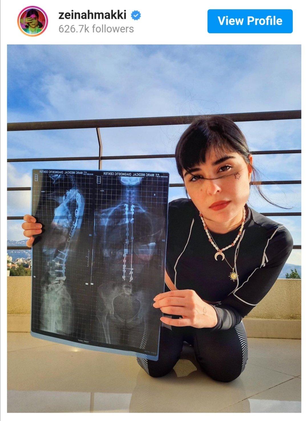 الممثلة زينة مكي
