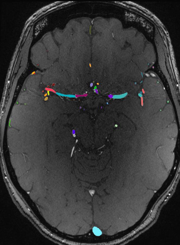 Brain vasculature