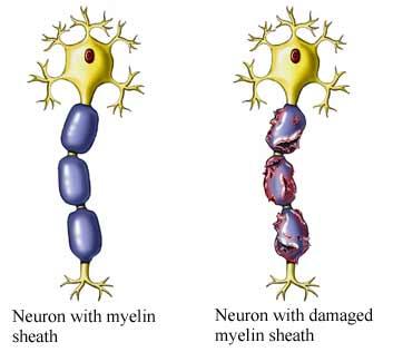 Multiple-Sclerosis and meditation case study_UVA health