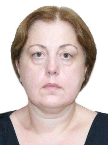 MD. Irma Natsvlishvili